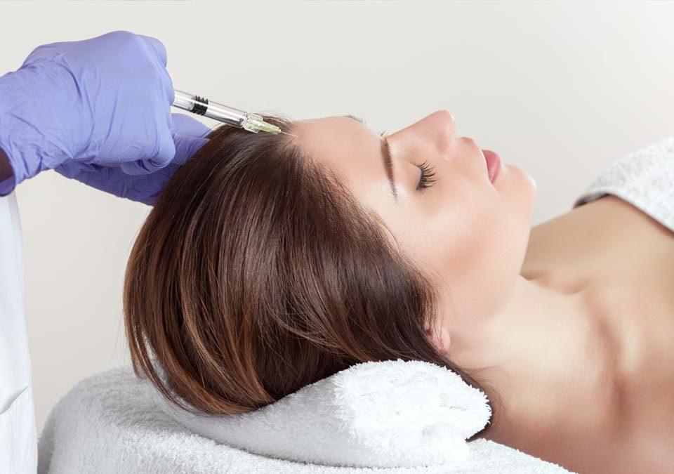 Inyección de mesoterapia en el cuero cabelludo