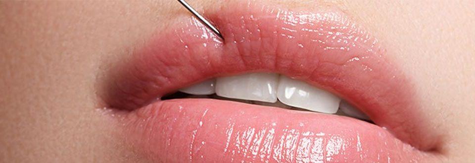 Labios de mujer en tratamiento de relleno