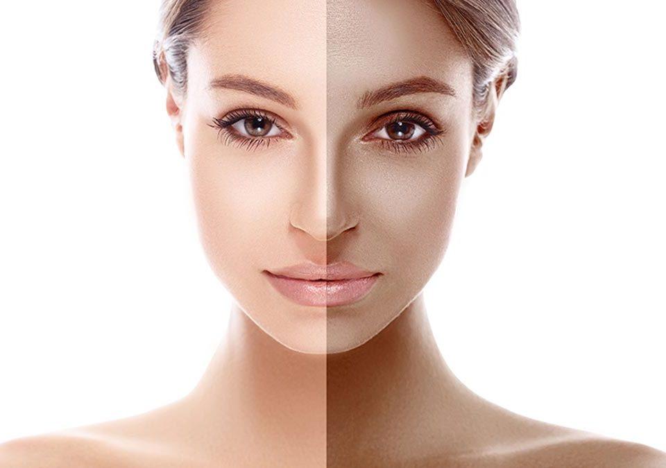 Antes y después de tratamiento antimanchas en la cara