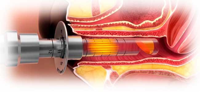Atrofia y sequedad vulvar y vaginal