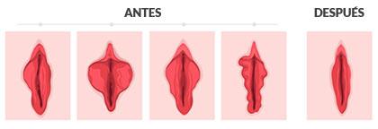 Labioplastia de reducción de labios menores