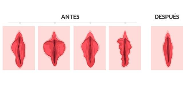 Revisión ginecológica anual