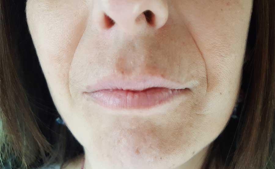 Antes de relleno de labios B