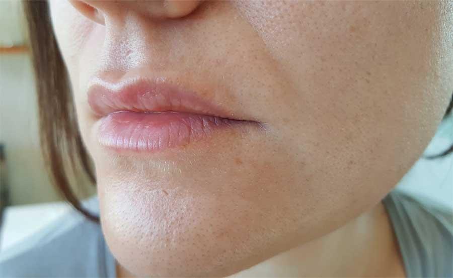 Antes de relleno de labios