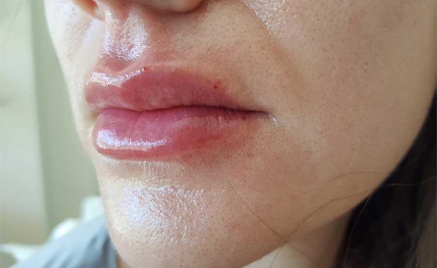 Después de relleno de labios