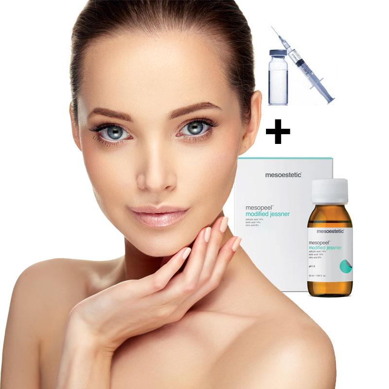 Promoción de botox y peeling