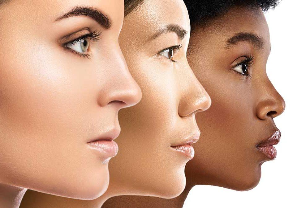 contouring facial con ácido hialurónico
